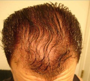 Don't let the Cisco Aironet cause you hair loss.
